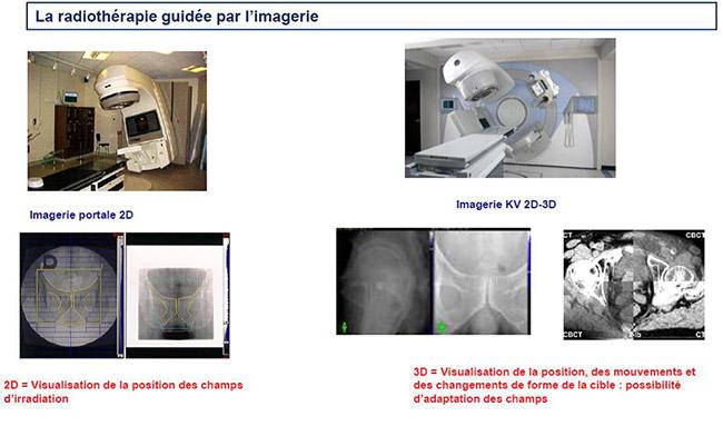 La radiothérapie guidée par l'imagerie