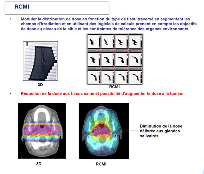 Image RCMI