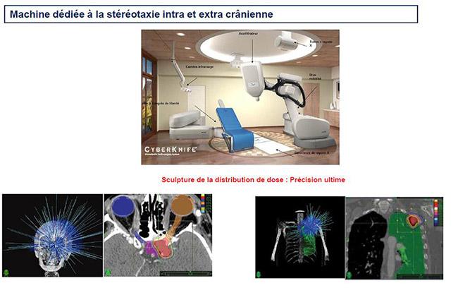 Machine dédiée à la stéréotaxie intra et extra crânienne