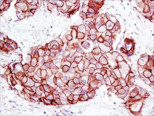 Mise en évidence de la surexpression d'HER2 par Immunohistochimie