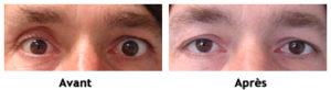 Énophtalmie post traumatique (enfoncement du globe oculaire)